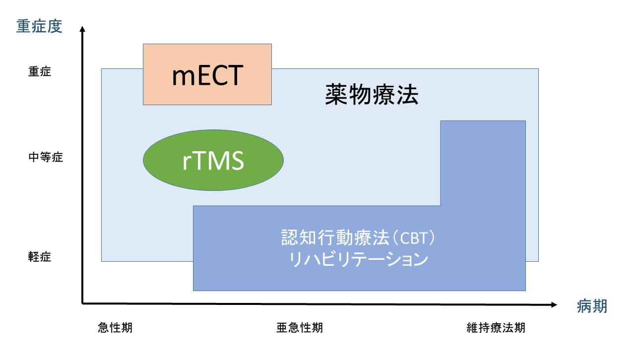 rTMS.jpg